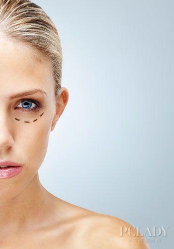 双眼皮手术可能的并发症