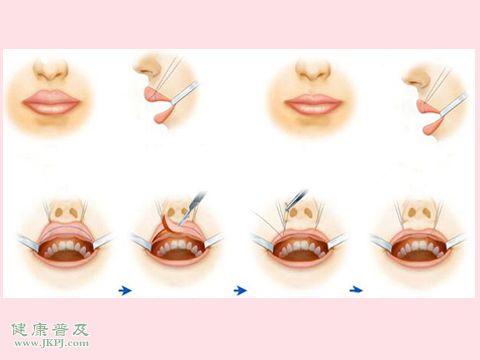微唇裂嘴唇整形需要多少钱