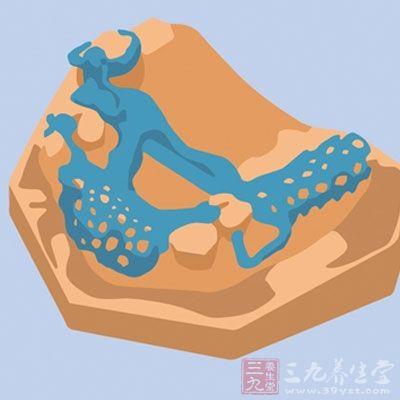 3D打印为骨科手术 新宠