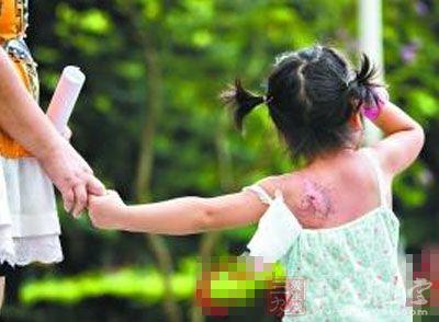 """被幼儿园老师烫伤后 3岁女童躲在纸箱""""城堡""""里"""